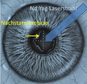 YAG-Kapsulotomie