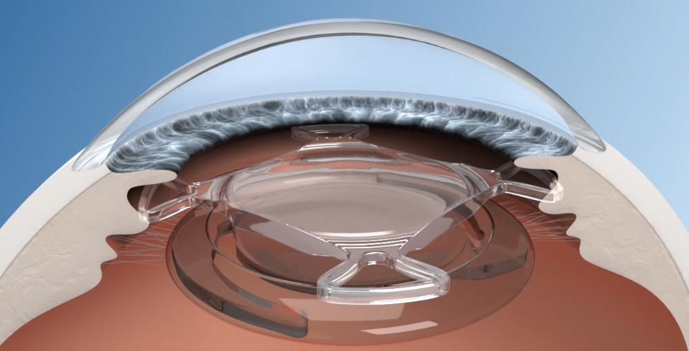 Makula-Linse implantiert - Abbildung 1stQ