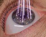 Link zu Augen-Laser-Chirurgie