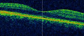 optischer Cohärenztomografie